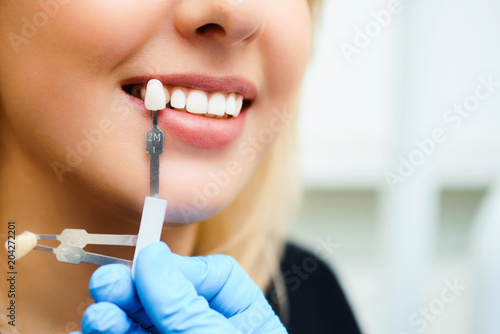 Fotografia  Beautiful smile and white teeth of a young woman