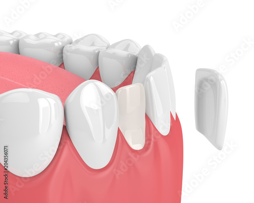 Fotografie, Obraz  3d render of teeth with veneer