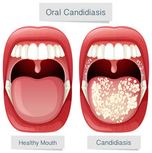 Human Mouth Anatomy Oral Candi...