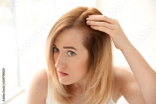 Young woman with hair loss problem on light background Canvas Print