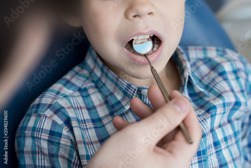 Fotografia  Close up  portrait of cute little boy sitting in dental chair with mouth open wh