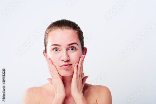 Canvas Print Allergic skin reaction on the female face
