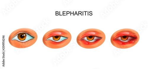 Photo inflammation of the eyelids. blepharitis