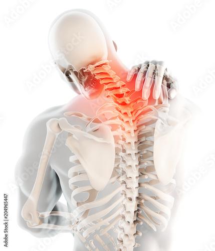 Cuadros en Lienzo Neck painful - cervical spine skeleton x-ray, 3D illustration.