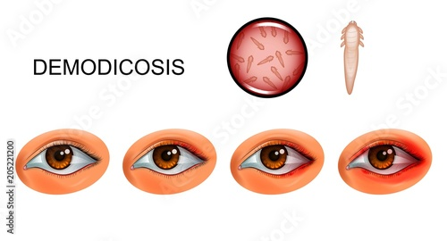 demodecosis. tick Demodex on eyelashes Wallpaper Mural