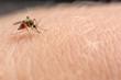canvas print picture - Mücke sticht in die Haut und saugt Blut