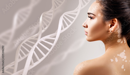 Fotografía  Young sensual woman with vitiligo disease in DNA chains.
