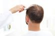 Mikroskopowa analiza stanu włosów i skóry głowy. Głowa mężczyzny z przerzedzonymi włosami podczas badania skóry głowy i włosów mikroskopem