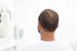 Łysienie. Głowa mężczyzny z przerzedzonymi włosami