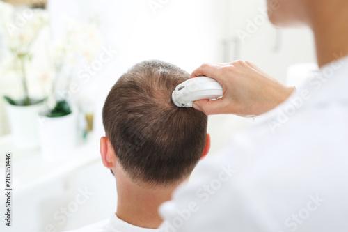 Fototapeta Badanie trychologiczne. Głowa mężczyzny z przerzedzonymi włosami podczas badania skóry głowy i włosów mikroskopem obraz