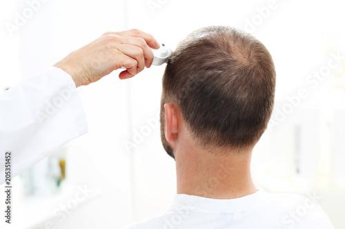Fototapeta Mikroskopowa analiza stanu włosów i skóry głowy. Głowa mężczyzny z przerzedzonymi włosami podczas badania skóry głowy i włosów mikroskopem obraz