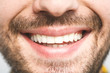 Leinwandbild Motiv Detailed image of young man smiling with perfect white teeth. Healthy concept. Close-up.
