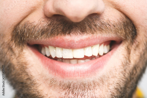 Fotografia  Detailed image of young man smiling with perfect white teeth