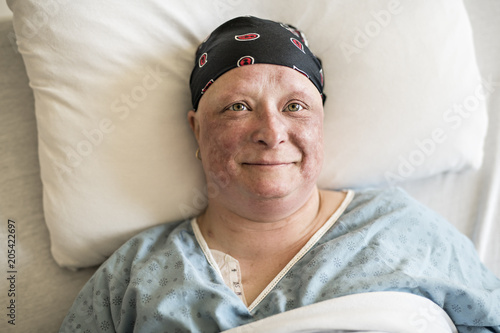 woman in hospital bed suffering from cancer - Buy this stock
