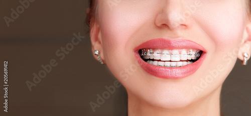 Fotografía  Braces on Teeth