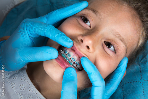 Fotografia  Orthodontist examining a little girl patient's teeth