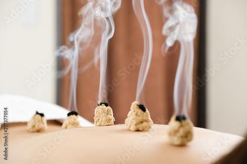 Photo 明るい鍼灸院で女性の背中に置かれた煙が出ているお灸