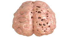 Brain In Severe Brain Disease,...