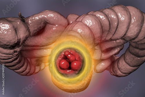 Photo Hemorrhoids, bottom view of hemorrhoic nodules inside anus, large and small inte