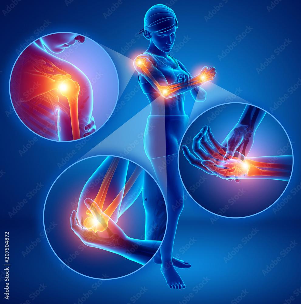 Fototapety, obrazy: 3d Illustration of Female Feeling Arm joint pain