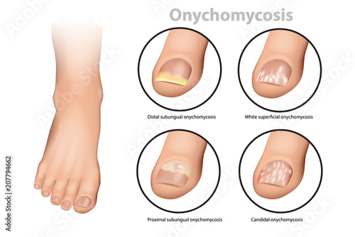 Fotografie, Obraz  Fungal Nail Infection