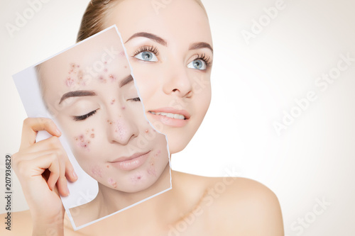 Photo portrait of woman with clean skin holding portrait with pimpled skin