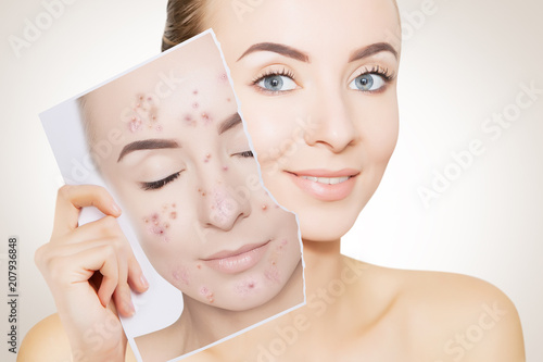 portrait of woman with clean skin holding portrait with pimpled skin Wallpaper Mural
