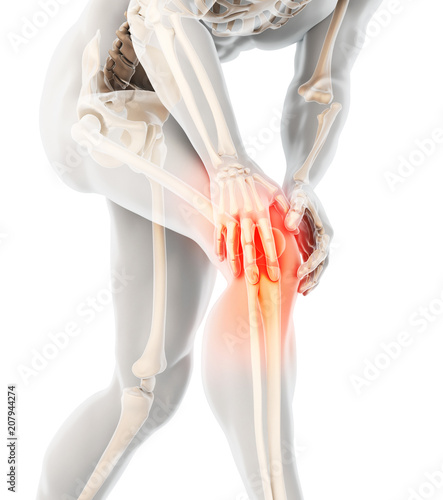 Obraz Knee painful - skeleton x-ray. - fototapety do salonu
