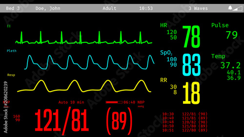 Fotografie, Obraz Monitoring of patient's condition, vital signs on ICU monitor in hospital