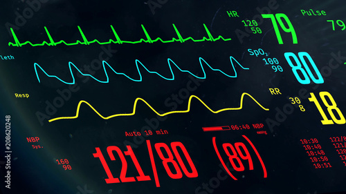 Fotografiet ICU monitor with stable vital signs, doctors monitoring patient's condition