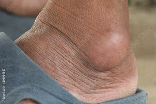 Canvas Print Close-up gout on a foot
