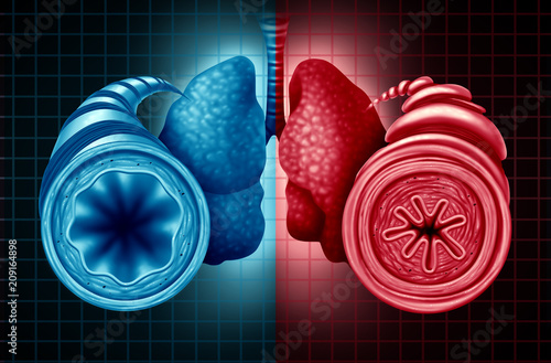 Asthma Health Diagnosis Wallpaper Mural