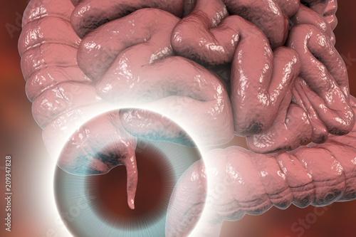 Human colon with appendix, 3D illustration Wallpaper Mural