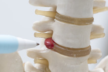 A Pen Pointing At Herniated Lumbar Disc Model