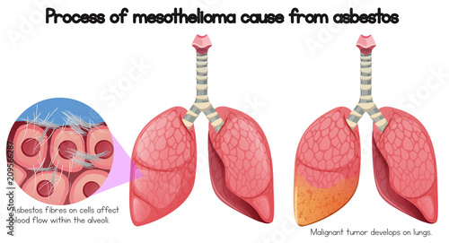 Process of mesothelioma cause of asbestos Canvas Print