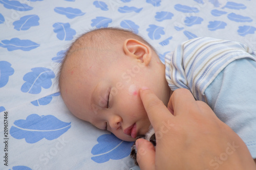 Sleeping Asian Baby With Red Spot Blister From Mosquito Bite And