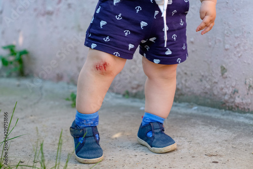 Photo bloody abrasion on the child's knee