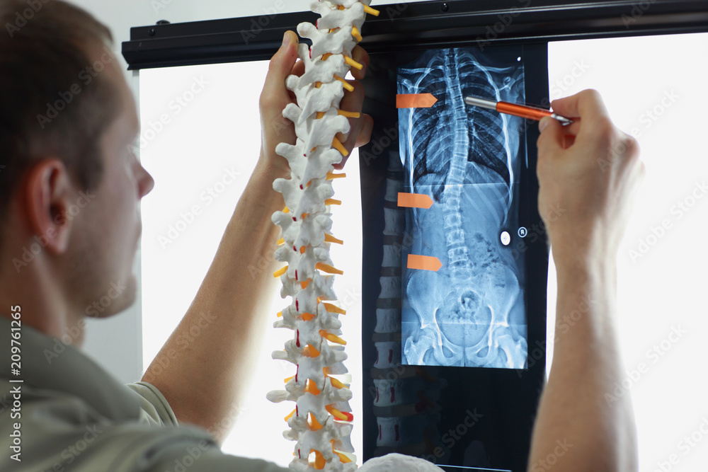 Photo  Professional with  model  of spine watching image of chest  at x-ray film viewer