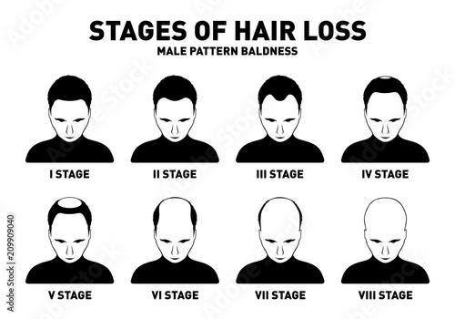 Fényképezés  Hair loss