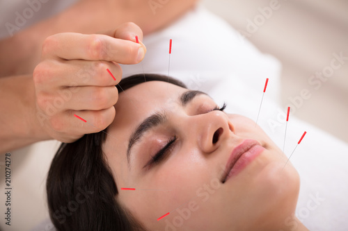 Photo  Beautiful Woman Getting Acupuncture Treatment