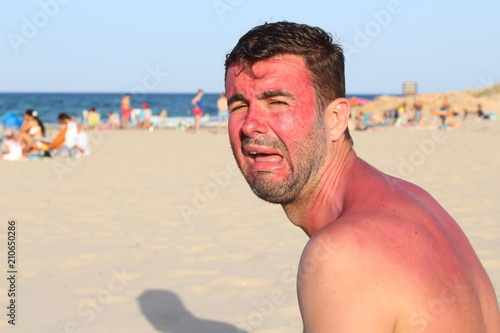 Fotografie, Obraz Man crying after getting wildly sunburned