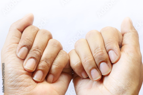 Fotografía  Close up dirty hand nails of Asian woman on white background have copy space for put text