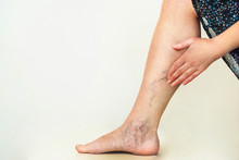Varicose Veins On The Womans L...