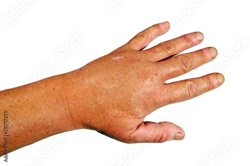 Geschwollene Hand nach dem Stich einer Wespe