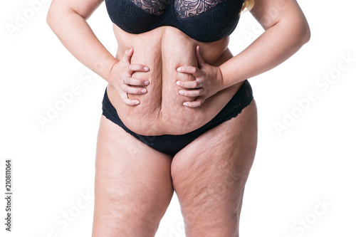 Fotografia, Obraz  Overweight woman with fat belly, obesity female body