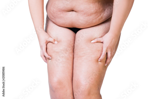 Obraz na plátne  Overweight woman with fat thighs, obesity female legs