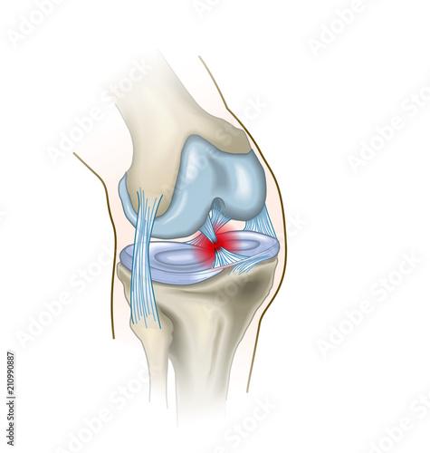 Photo Anterior cruciate ligament injury, medical illustration
