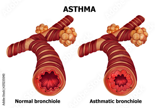 Anatomy of Asthma - Buy this stock photo and explore similar images ...