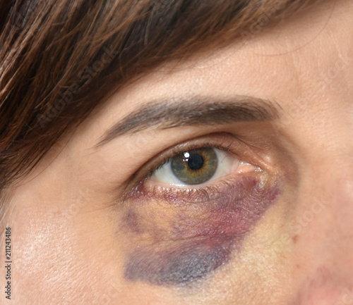 Fotografie, Obraz  Close up of woman with bruise on her face