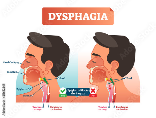 Photo Vector illustration about dysphagia and compered it in scheme